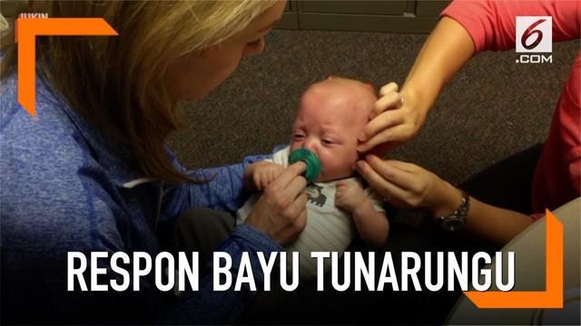 Seorang bayi yang terlahir tunarungu menunjukkan ekspresi lucu dan menggemaskan saat pertama kali mendengar suara.