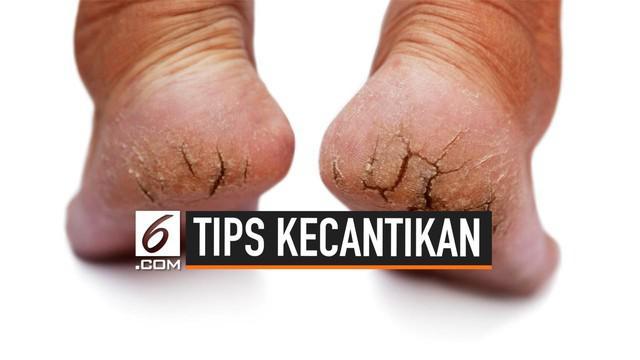Kulit kaki yang kering bahkan pecah-pecah biasanya disebabkan oleh iritasi dan alergi. Masalah ini dapat diatasi di rumah dengan cara-cara berikut ini.