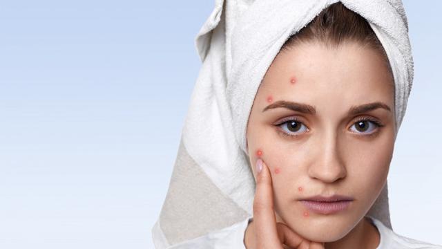 5 Faktor Penyebab Fungal Acne Dan Cara Mudah Mengatasinya Hot Liputan6 Com