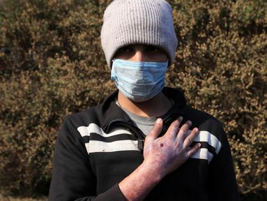 Sirhan Awwad menunjukkan kondisi tanganya setelah terkena dampak bom kimia yang dilancarkan oleh militan ISIS di Qayyara, Irak (12/11). Militan ISIS dilaporkan telah melakukan aksi membakar pabrik kimia. (REUTERS/Air Jalal)