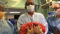 Kevin Daly, pasien di rumah sakit Lenox Hill yang semula mengira hanya mengalami buncit biasa kaget bukan main saat tahu ada tumor 13,6 kg di perutnya (Lenox Hill Hospital)