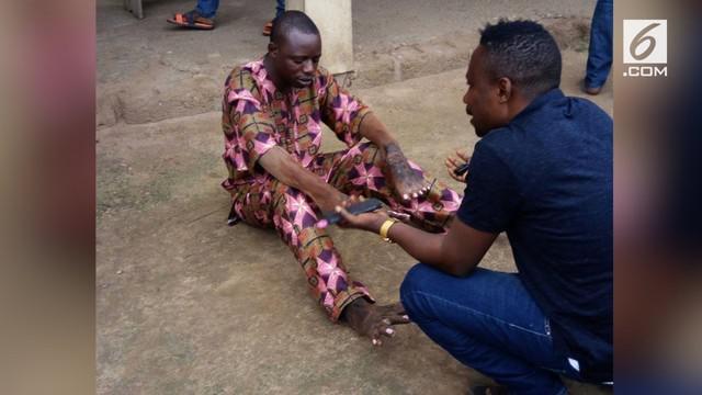 Posisi kaki dan tangan aktor ini bertukar posisi. Postingan fotonya ramai dikomentari warganet, mereka berpikir ini sebuah kutukan.