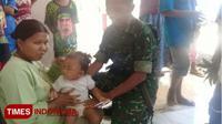 Avi Salima, balita yang jadi korban cakaran kera. (TIMES Indonesia/Happy)