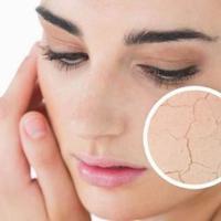 Ingin menghidrasi kulit wajah, tanpa membuatnya menjadi kering? Simak beberapa tipsnya di sini.
