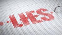 Ilustrasi alat pendeteksi kebohongan (iStock)