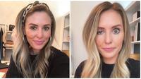 Influencer di Chicago membagikan pengalamannya setelah menjalani botox yang membuat satu kelopak matanya turun. (dok. Instagram @somethingwhitty)