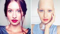 Elizaveta Bulokhova, model cantik yang terkena kanker tulang yang menyerang rahang. (Huffington Post)