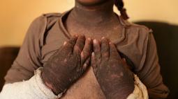 Doaa menunjukan kulit tangannya yang berubah akibat dampak bom kimia di Qayyara, Irak, (12/11). Pabrik kimia yang dibakar oleh ISIS selain memakan korban jiwa, anak-anak mengalami cacat pada kulit tubuh akibat radiasi asap. (REUTERS/Air Jalal)