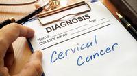 Fakta Terbaru Mengenai Kanker Serviks