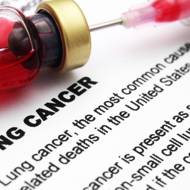 Kualitas Hidup Pasien Kanker Paru Stadium Lanjut Meningkat