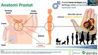 Kanker Prostat. Foto: Tangkapan layar presentasi Dr. Agus Rizal Ardy, Sp.U(K), Ph.D, youtube RS Bunda (28/9/2020).