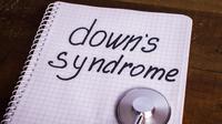 6 Masalah Kesehatan yang Menimpa Anak Down Syndrome (MsMaria/Shutterstock)