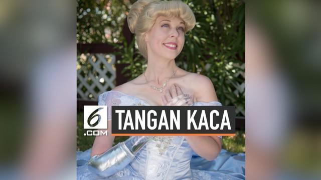 Seorang wanita bernama Mandy Pursley berpenampilan mirip karakter Cinderella. Namun, Cinderella yang satu ini berbeda dari biasanya. Ia tak mengenakan sepatu kaca, melainkan bertangan kaca. Begini kisahnya..