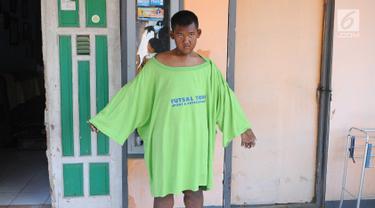 Penampakan Arya Permana Si Bocah Obesitas yang Turun 105 Kilogram