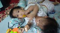 Dua bayi kembar siam asal Kendari, Aqila Dewi Sabila dan Azila Dewi Sabrina.(Liputan6.com/Ahmad Akbar Fua)