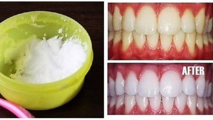 Putihkan Gigi Kuning Dalam Hitungan Menit Dengan Ramuan Ini