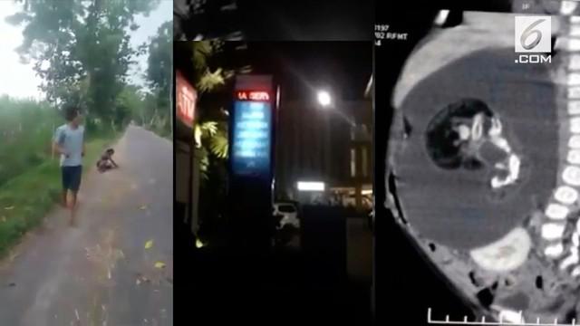 Video Hit hari ini menamplkan bayi 7 bulan yang hamil, pria yang pukuli orang gila, dan running text tak senonoh di hotel.