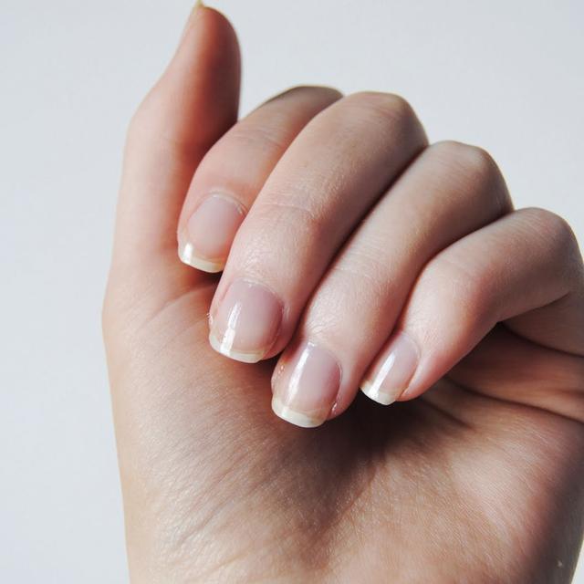 8 Kondisi Kuku Ini Tunjukkan Masalah Kesehatan Tubuh Health Liputan6 Com