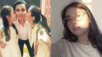 7 Potret Cantik Rena Oktapia, Adik Billy Syahputra yang Jarang Terekspos (Sumber: Instagram/@rena2799)