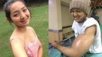 Gadis cantik yang merupakan survivor kanker ini berharap bahwa cerita yang dibagikannya ke media sosial dapat menginspirasi penderita kanker lainnya. (Foto: Viral4Real)