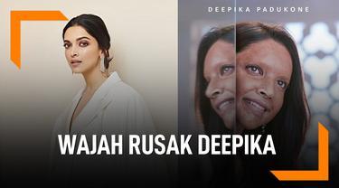 Deepika Padukone Tampil Dengan Wajah Rusak, Kenapa