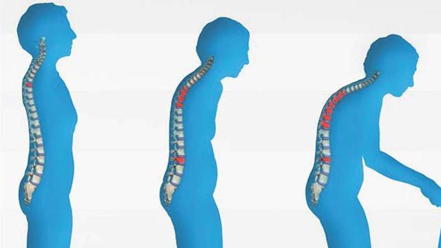 7 Tanda Gejala Osteoporosis - Health Liputan6.com