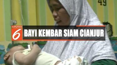 Kondisi fisik Fadli, salah satu dari bayi kembar ini melemah dan menderita batuk, flu, dan demam.