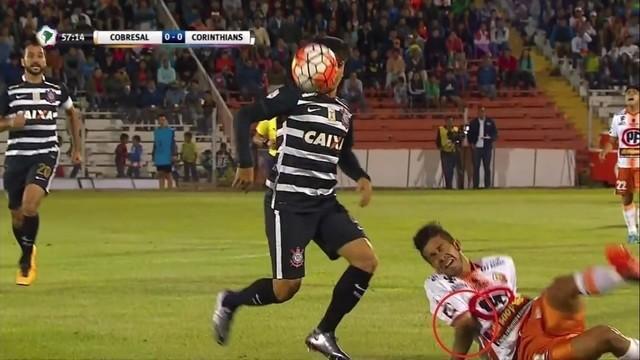 Gelandang asal Argentina Jonathan Benitez menderita salah satu cedera sepak bola terburuk yang pernah kita lihat ketika Cobresal kalah melawan Corinthians 0-1