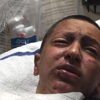 Seorang bocah berusia 14 tahun menjadi buta sebelah usai coba-coba menghisap rokok elektrik. | via: nydailynews.com