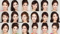 Foto-foto hasil operasi plastik ini masih diminati pembaca setia Liputan6.com edisi Kamis (7/11/2014)