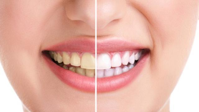 Cara Ini Bisa Putihkan Gigi Dalam Waktu 15 Menit Fashion Beauty
