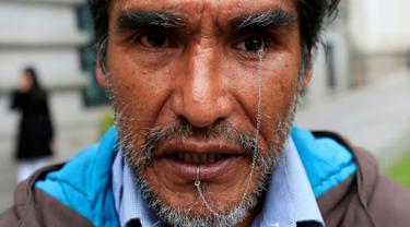 Edwin Morales, salah satu pemimpin demonstrasi berpose dengan mata palsunya di La Paz, Bolivia (12/4). Edwin merupakan satu dari ratusan penyandang cacat di Bolivia yang menuntut Presiden Bolivia Evo Morales. (REUTERS/David Mercado)