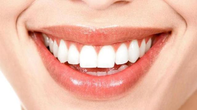 2 Bahan Dapur Ini Bikin Gigi Putih Dalam 2 Hari Fashion Beauty