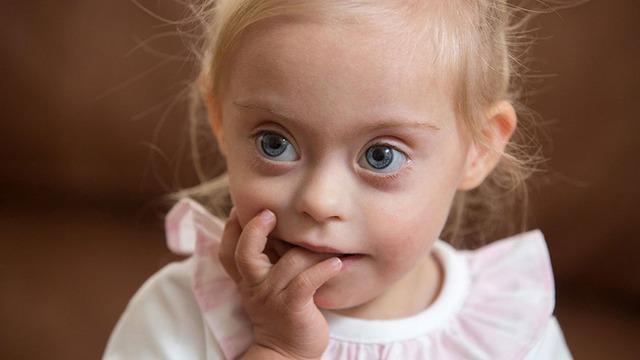 Meskipun sang ibu menjelaskan bahwa anaknya penyandang down syndrome, tapi sang agen model tak mempermasalahkannya.
