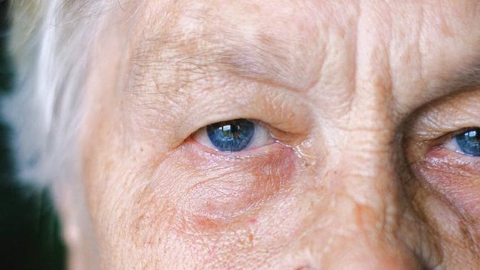 Mengenal Penyakit Degenerasi Makula, Termasuk Tipe Basah dan Kering -  Health Liputan6.com