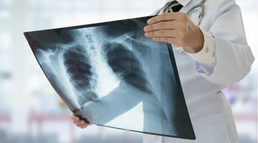 Ilustrasi Tuberkulosis