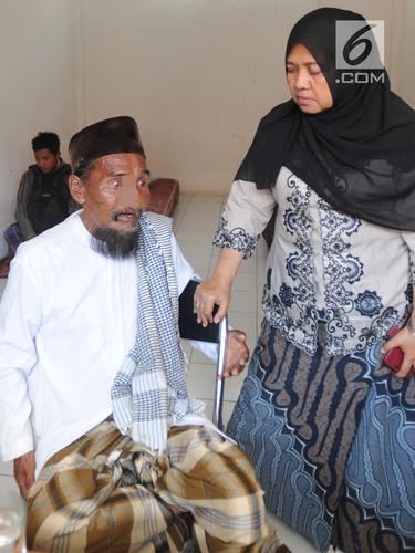 Viral Bermobil, Satpol PP Amankan Pengemis Tanpa Hidung di Bogor