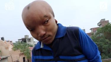Kepala seorang pria asal India membesar karena penyakit. Ia dijuluki alien oleh penduduk setempat.
