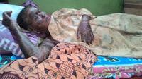 Penyakit kulit langka itu diidap warga Brebes sejak sebulan lalu. (Liputan6.com/Fajar Eko Nugroho)