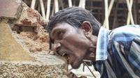 Selama 20 tahun, pria ini tak henti mengonsumsi batu bata, kerikil, dan lumpur karena kecanduan.