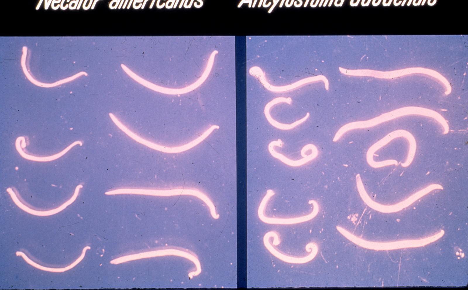 Terdapat dua jenis cacing tambang yakni Necator americanus (kiri) dan Ancylostoma duodenale