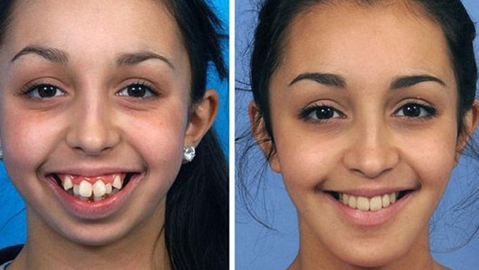Setelah Operasi Gigi Dan Dagu Perubahan Gadis Ini Bikin Bengong