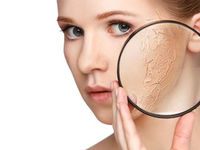 6 Langkah Mengatasi Kulit Kering Dan Terkelupas Beauty Fimela Com