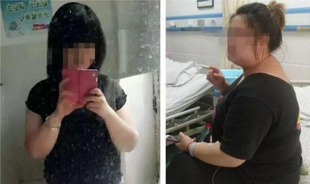 Wanita yang mengonsumsi pil diet selama 7 tahun/copyright odditycentral.com