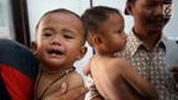 Nampak beberapa anak kekurangan gizi yang terjadi di daerah Pandeglang (Liputan6.com)