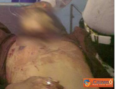 Dua Polisi Tertembak di Bank BCA Palu