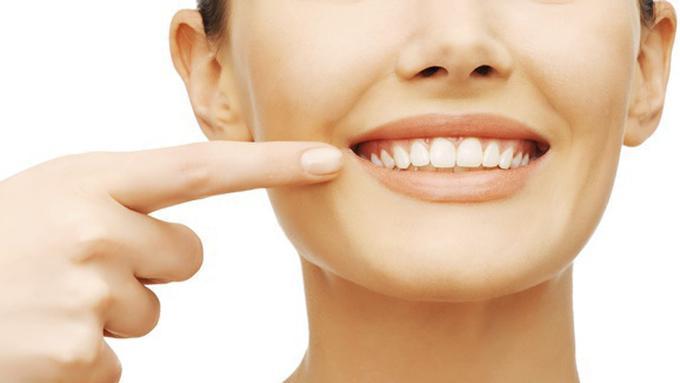 Hilangkan Karang Gigi Secara Alami Dan Mudah Hanya Dengan Cengkeh