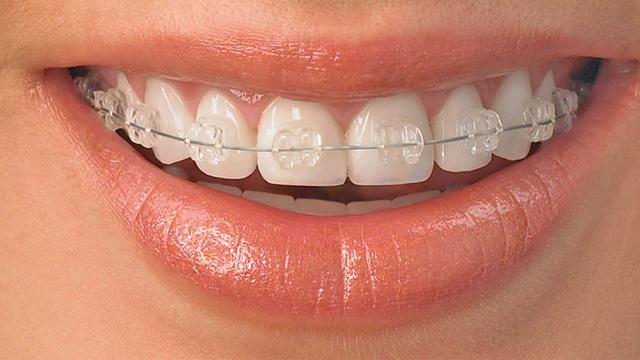 5 Cara Alami Putihkan Gigi Yang Kuning Health Liputan6 Com