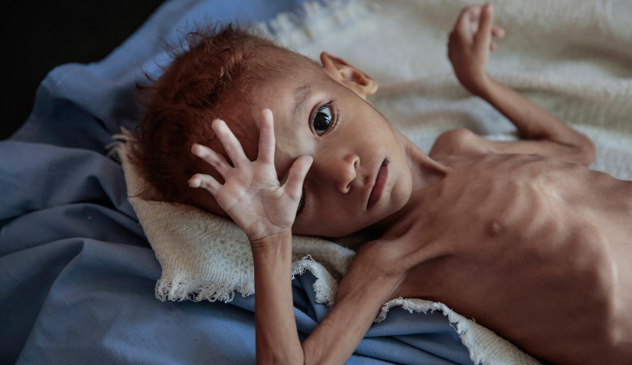 FOTO: Begini Kondisi Anak-Anak Yaman Penderita Gizi Buruk - Global  Liputan6.com