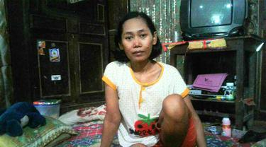Lutut Kanan Ibu 4 Anak Terus Bengkak Usai Demam